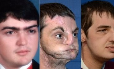 Le trasplantaron la cara y ahora es tapa de una revista de moda